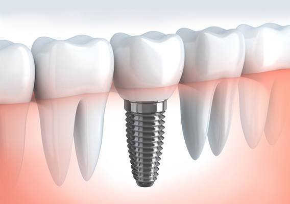 Dental Implants South Florida