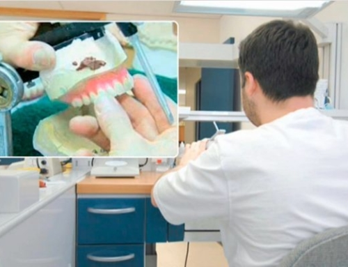 Reasons Why You Should Avoid Cheap Dental Implants
