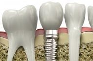Dental Implants Florida