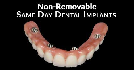 Non-Removable Teeth In One Day Dental Implants Florida
