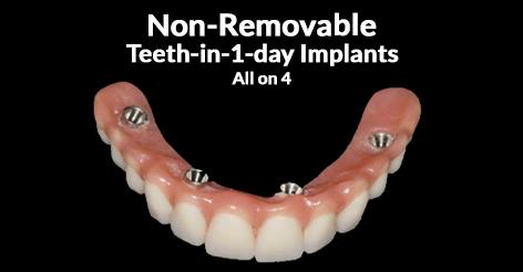 non-removable-teeth-in-1-day-implants-all-on-4
