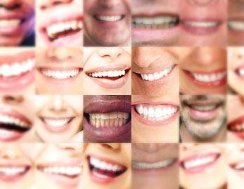 Friedman Dental Group's Smile Gallery