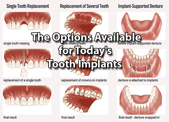 The Options Available for Today's Tooth Implants