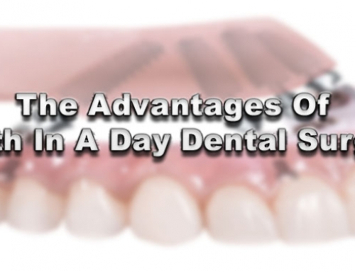 The Advantages Of Teeth In A Day Dental Surgery