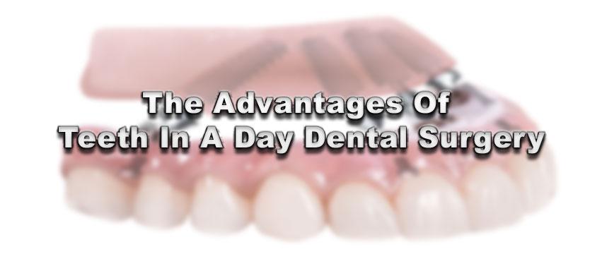 Exposing 6 Myths About Dental Implants Friedman Dental