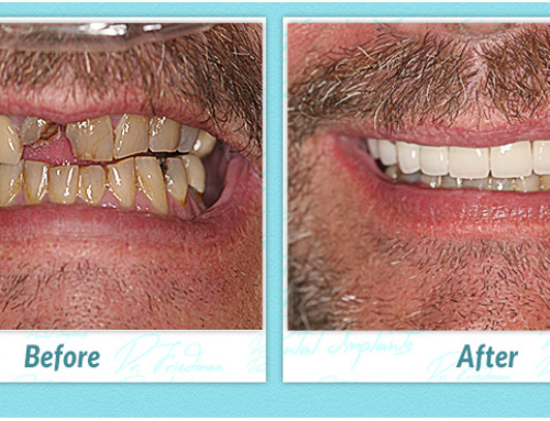 Undergoing the Dental Implant Procedure to Get a Better Smile