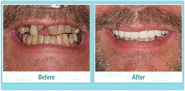 The Pros And Cons Of Porcelain Veneers Friedman Dental Group