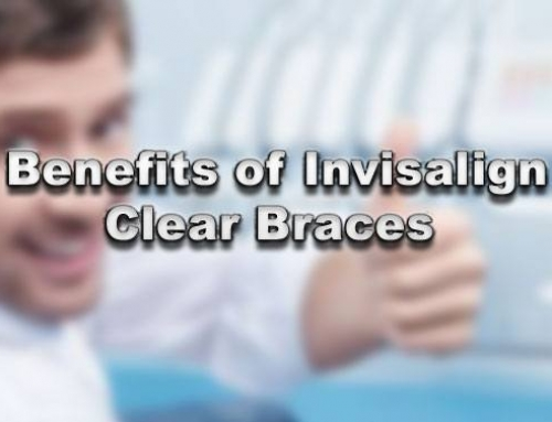 Benefits of Invisalign Clear Braces