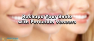 reshaping smile with porcelain veneers