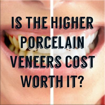 Porcelain Veneers Cost