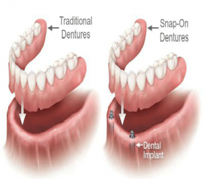 Types of Dentures Florida